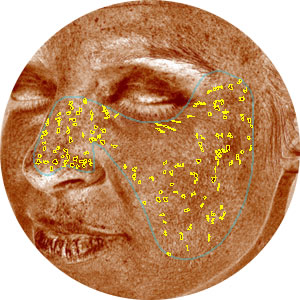 Brown Spots Visia Complexion Analysis