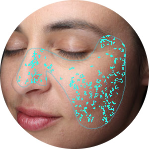 Spots Visia Complexion Analysis
