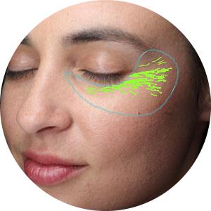Wrinkles Visia Complexion Analysis